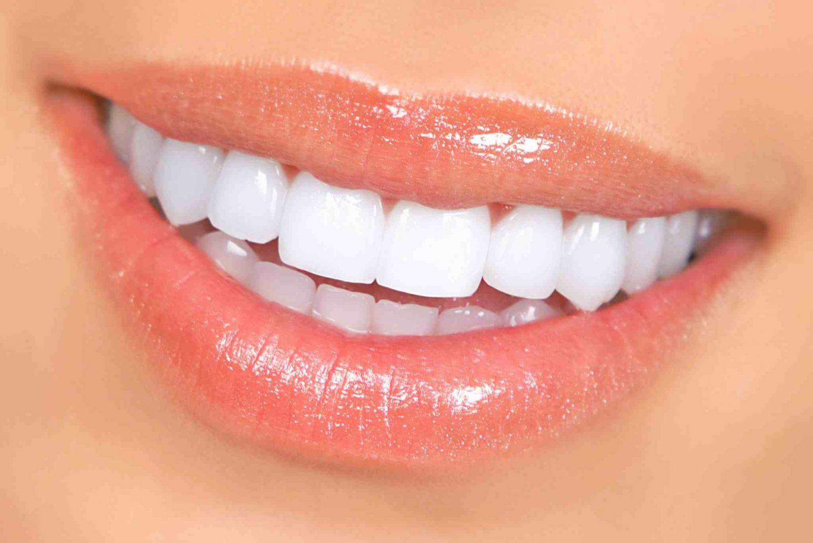 imagesblanchiment-des-dents-2.jpg