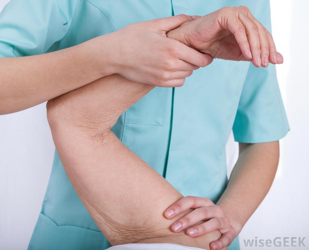 Contracture du biceps : mieux cerner son problème pour y remédier